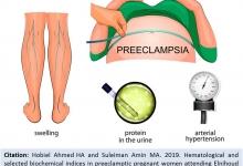 preeclamptic_pregnant_women_OJAFR